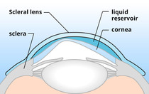 How scleral lenses fit